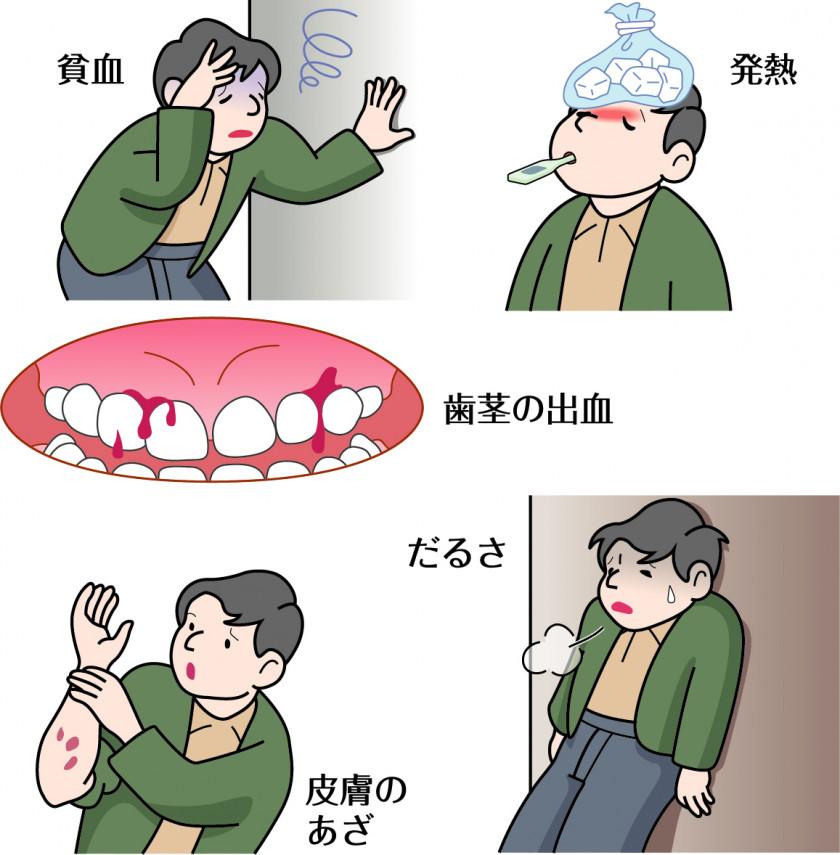 疾患チェック ~急性白血病~