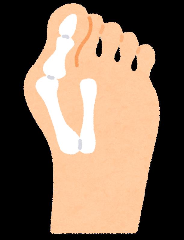 外反母趾の患者様の症例